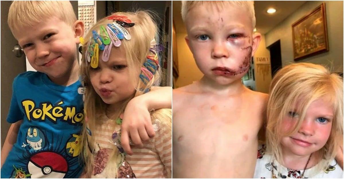 Menino-de-seis-anos-salva-irma%CC%83-mais-nova-do-ataque-de-um-ca%CC%83o.jpg